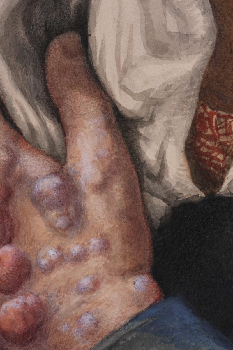 Pasient med lepra, kvinne