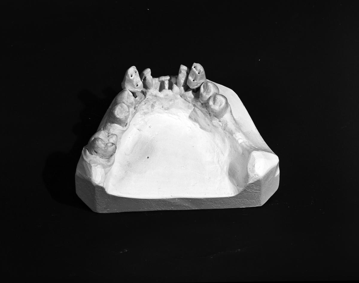 Modell av Tandprotes